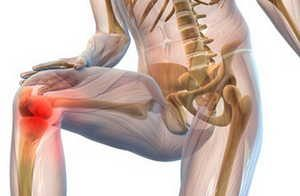 травма, сустав, колено