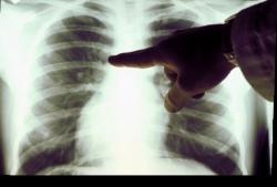 рак, профилактика, лёгкие