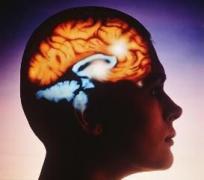инсульт, мозг