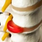 межпозвоночная грыжа, лечение