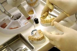 зубы, протезы