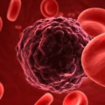 исследование, онкология