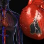 миокард, сердце