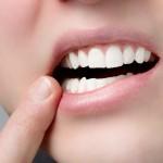 зубы, протезирование