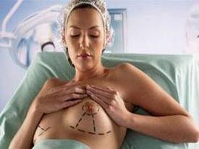 мастоптоз, грудь
