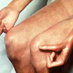 склеродемия, симптомы, лечение