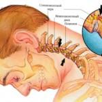 позвоночник, спина, заболевания