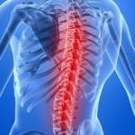 спина, болезни, лечение