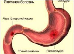 желудок и двенадцатиперстная кишка