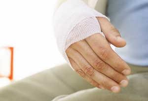 рана, рука