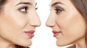 ринопластика, нос