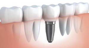 стоматология, имплант, протез