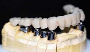 имплатация, протезирование зубов