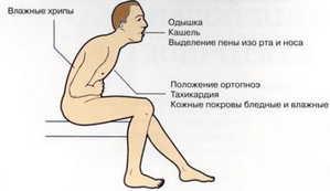 плеврит, пневмония
