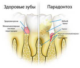 парондонтоз, стоматология